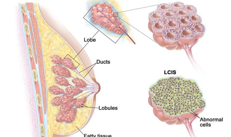 Neoplasia Intralobulillar Lobular - Gine4