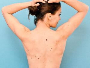 Mujer con lunares en la espalda
